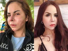 Phát hoảng với gương mặt biến dạng khủng khiếp sau thẩm mỹ của hot girl chuyển giới Linda