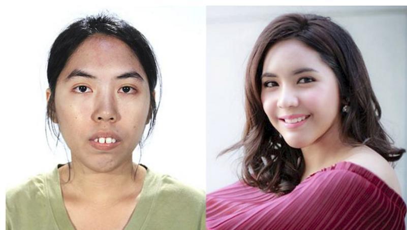 Liên tục bị từ chối khi xin việc, cô gái có khuôn mặt xấu xí biến đổi bất ngờ sau thẩm mỹ-1