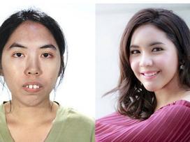Liên tục bị từ chối khi xin việc, cô gái có khuôn mặt xấu xí biến đổi bất ngờ sau thẩm mỹ