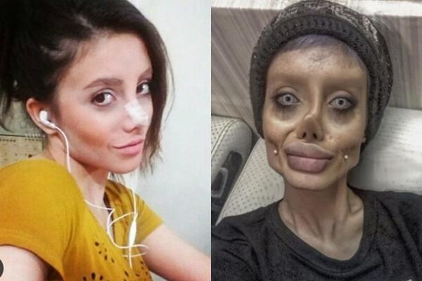 Cô gái hóa quỷ dạ xoa sau 50 lần phẫu thuật thẩm mỹ để giống thần tượng Angelina Jolie-1