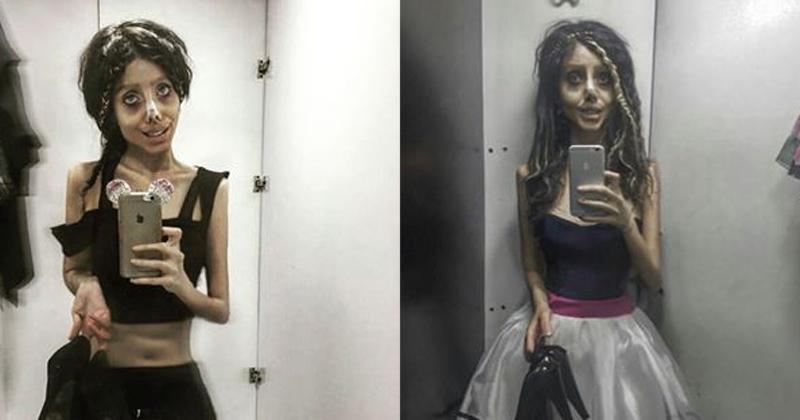 Cô gái hóa quỷ dạ xoa sau 50 lần phẫu thuật thẩm mỹ để giống thần tượng Angelina Jolie-6