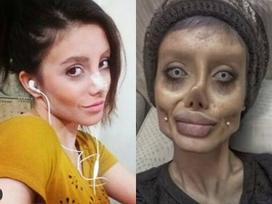 Cô gái hóa 'quỷ dạ xoa' sau 50 lần phẫu thuật thẩm mỹ để giống thần tượng Angelina Jolie