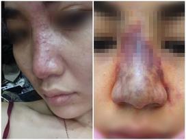 Tiêm filler nâng mũi tưởng ngon ăn, cô gái khóc thét khi biết mũi có thể hoại tử vì tiêm trúng tĩnh mạch