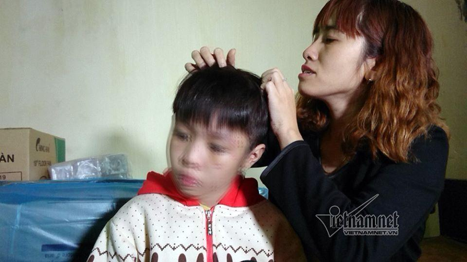 Bé trai bị bố và mẹ kế đánh rạn sọ não xin tha cho bố-3