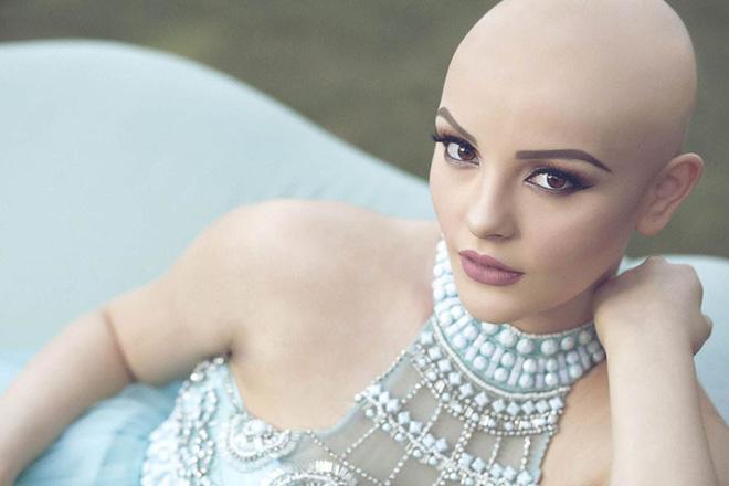 Cô gái 17 tuổi xinh như búp bê cắt trụi tóc để chụp ảnh, biết được sự thật ai cũng nể phục-6