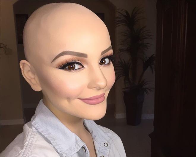 Cô gái 17 tuổi xinh như búp bê cắt trụi tóc để chụp ảnh, biết được sự thật ai cũng nể phục-5