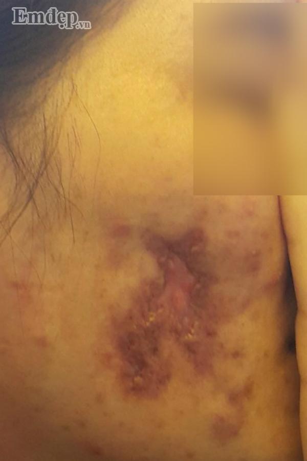 Bác sĩ thẩm mỹ rùng mình hút ra 20 cốc mủ từ ngực nạn nhân biến chứng nặng sau khi tiêm Filler rởm-2