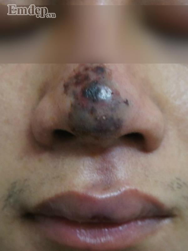 Bác sĩ thẩm mỹ rùng mình hút ra 20 cốc mủ từ ngực nạn nhân biến chứng nặng sau khi tiêm Filler rởm-3