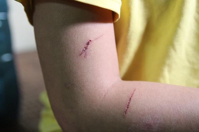 Những vết thương trên cơ thể bé trai 10 tuổi bị bạo hành ai nhìn thấy cũng xót xa-6