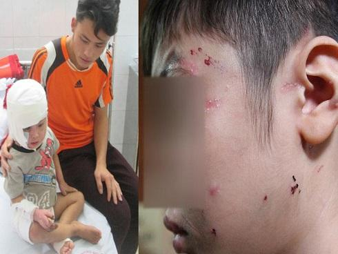 Ảnh hot trong tuần: Chân dung cha ruột và mẹ kế bạo hành con trai nứt sọ, gãy xương sườn ở Hà Nội