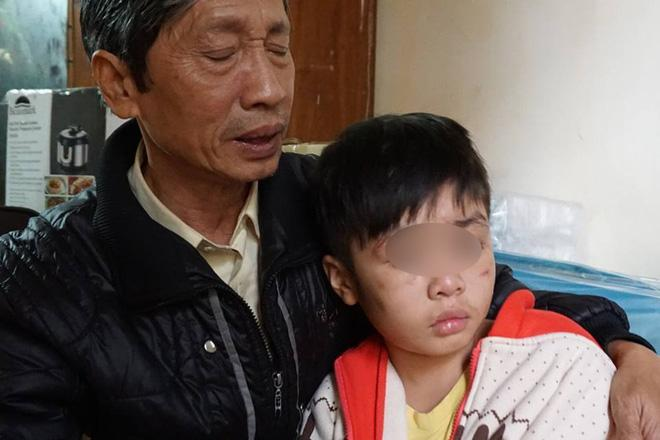 Lãnh đạo trường học của bé bị bạo hành: Hôm khai giảng không thấy bé đi học nên có gọi điện hỏi thăm-2