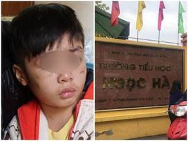 Lãnh đạo trường học của bé bị bạo hành: 'Hôm khai giảng không thấy bé đi học nên có gọi điện hỏi thăm'