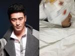 Nam diễn viên 'Thiên sơn mộ tuyết' đang hôn mê vì gặp tai nạn nghiêm trọng