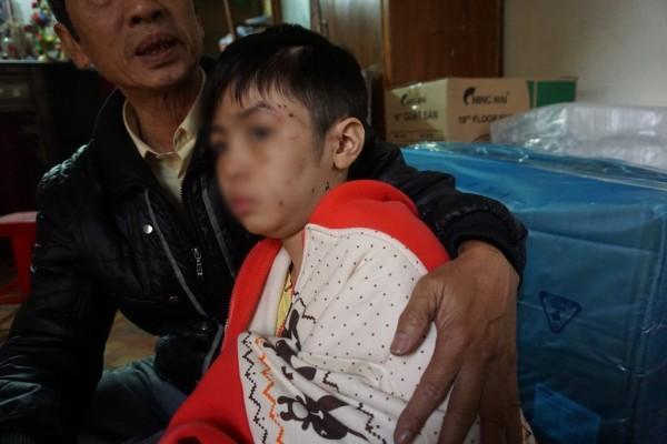 Khởi tố, bắt tạm giam người cha và cấm xuất cảnh mẹ kế bạo hành bé trai 10 tuổi-3