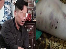 Vụ bé trai 9 tuổi bị bố đánh: 'Tôi chỉ đánh con vài vết lằn mông, còn lại cháu bị nhọt'