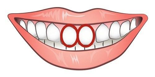 Nhìn cặp răng cửa, thấy ngay bản chất của một người-2