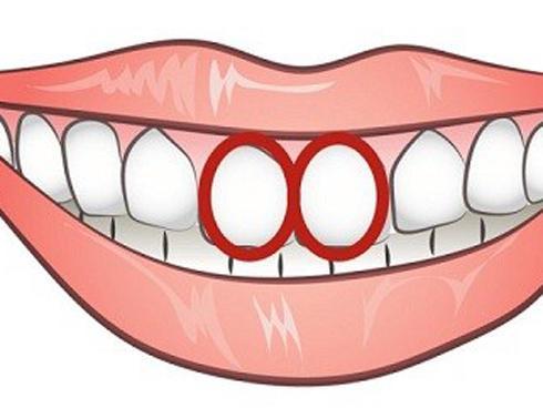 Nhìn cặp răng cửa, thấy ngay bản chất của một người