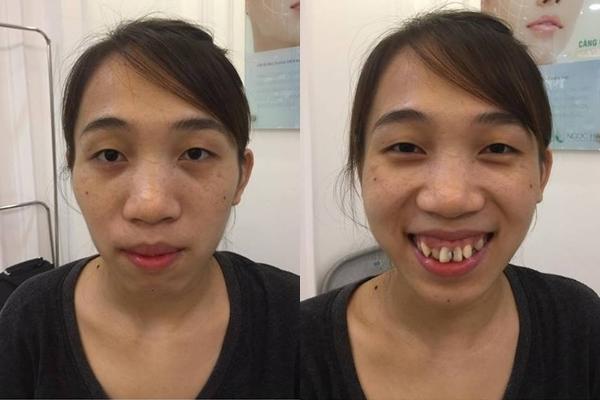 Từng bị gọi 'khỉ đột Amazon', cô gái 21 tuổi xuất hiện cực xinh đẹp sau thẩm mỹ-1