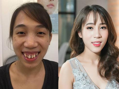 Từng bị gọi 'khỉ đột Amazon', cô gái 21 tuổi xuất hiện cực xinh đẹp sau thẩm mỹ