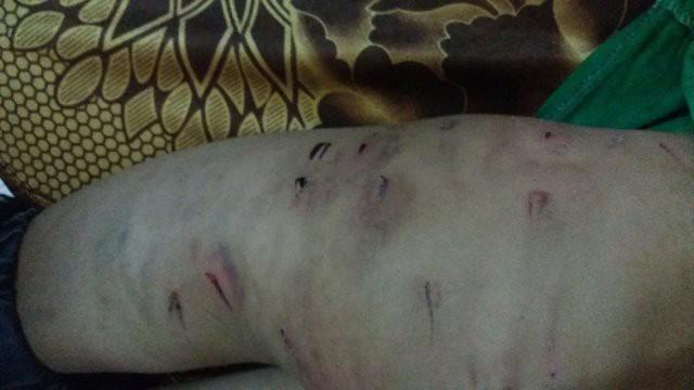 Vụ cháu trai 9 tuổi bị bạo hành bằng dây điện: Bố mẹ ký đơn hòa giải-1