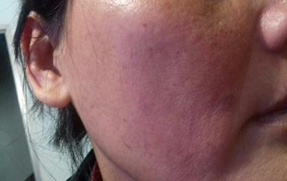 Sơn La: Bất chấp con trai 10 tuổi đứng trước mặt, chồng vẫn đánh đập và cắt trọc đầu vợ-3