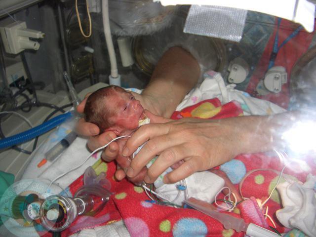 Bất chấp quy tắc, nữ y tá đặt bé sơ sinh hấp hối nằm cạnh chị sinh đôi, tạo nên kết quả chấn động-1