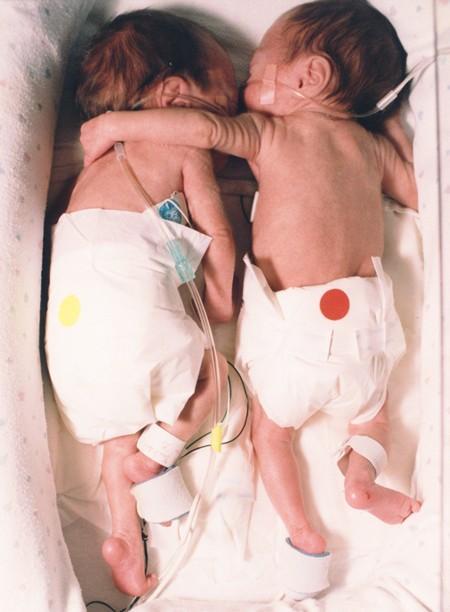 Bất chấp quy tắc, nữ y tá đặt bé sơ sinh hấp hối nằm cạnh chị sinh đôi, tạo nên kết quả chấn động-2