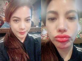 Tin sao Việt: Trương Ngọc Ánh 'biến dạng' môi vì ăn uống