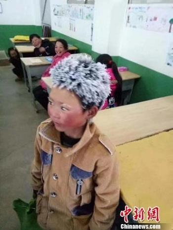 Đằng sau chuyện cậu bé Trung Quốc bị đóng băng toàn bộ tóc vì giá rét-1