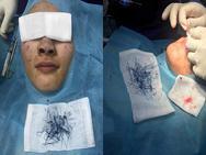 ẢNH HOT trong tuần: Kinh dị bác sĩ gắp hàng trăm sợi chỉ nilon trong 'mũi giả' một phụ nữ Hà Nội