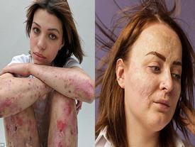 10 cô gái dũng cảm và câu chuyện vết sẹo đi theo cả cuộc đời