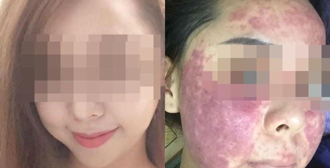 Khuôn mặt đáng sợ của cô gái khiến chị em dè chừng với mỹ phẩm không rõ nguồn gốc-2