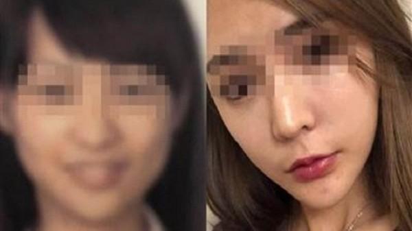 Gọt cằm quá đà, cô gái khóc ròng không thể về quê vì quá khác với ảnh hộ chiếu-1