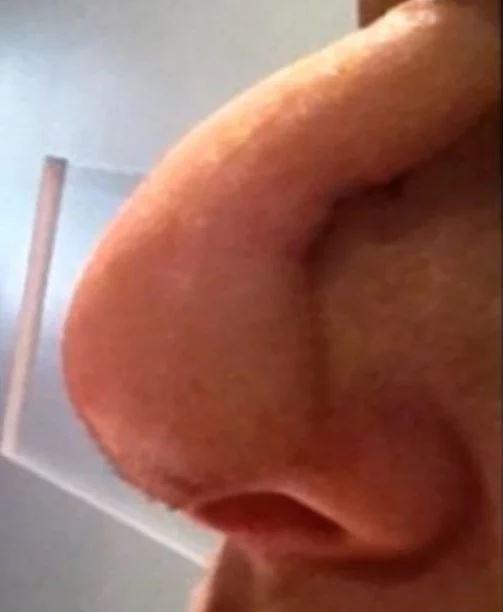 KHIẾP SỢ: Mũi thủng lỗ khổng lồ chỉ vì dùng thuốc mỡ sai cách-5
