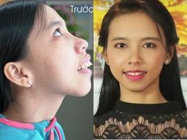 Hành trình kiếm tìm sắc đẹp của cô gái sống thiếu tình thương cha mẹ