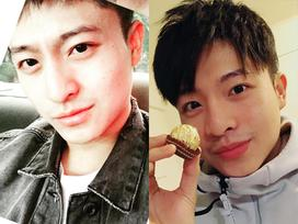 Harry Lu đã hoàn toàn khỏe mạnh sau 20 lần điều trị, phẫu thuật mũi, xương quai hàm, gò má