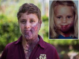 Tâm sự đau đớn của người phụ nữ sinh ra với vết chàm khổng lồ: 'Nó đã hủy hoại tuổi thơ của tôi!'