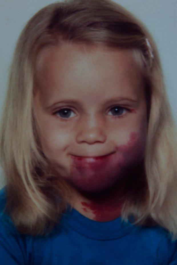 Tâm sự đau đớn của người phụ nữ sinh ra với vết chàm khổng lồ: Nó đã hủy hoại tuổi thơ của tôi!-1