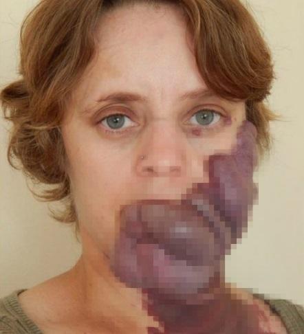 Tâm sự đau đớn của người phụ nữ sinh ra với vết chàm khổng lồ: Nó đã hủy hoại tuổi thơ của tôi!-2
