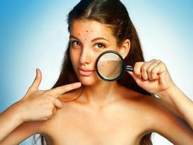 Mặt nạ táo cực tốt cho làn da của bạn