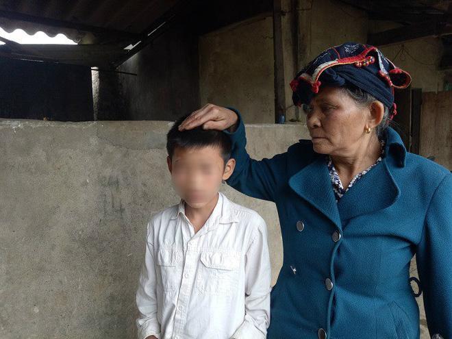 Sơn La: Bé trai 12 tuổi nhập viện vì bị bố dượng đánh vì nghi trộm tiền của hàng xóm-1