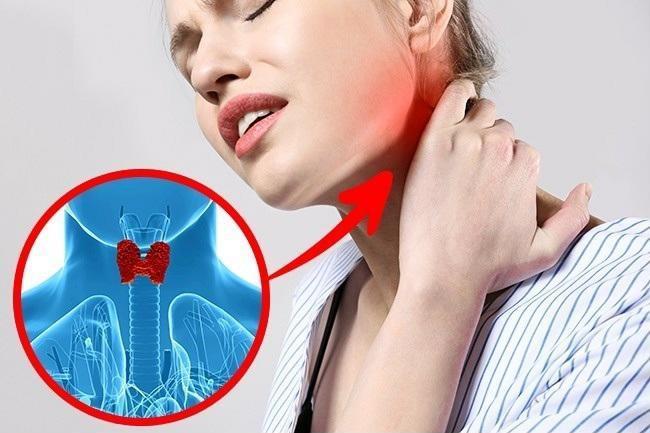 Những dấu hiệu phổ biến của bệnh tuyến giáp mà bạn thường hay bỏ qua-6