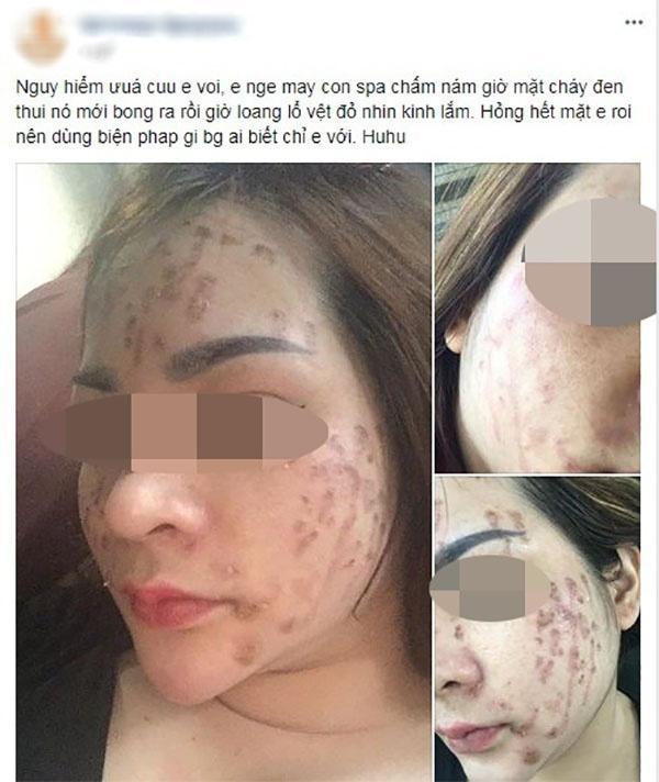Cô gái cháy loang mặt sau khi chấm nám: Cần gặp chuyên gia da liễu sớm nếu không muốn xấu xí cả đời-1