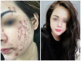 Cô gái cháy loang mặt sau khi chấm nám: Cần gặp chuyên gia da liễu sớm nếu không muốn xấu xí cả đời