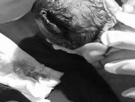 Lào Cai: Bà nội dùng dao đỡ đẻ, trẻ sơ sinh bị rách đầu vệt dài