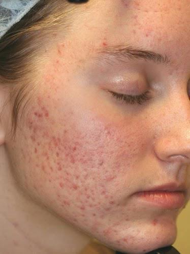 Da mụn thâm đỏ chi chít cũng giảm sưng hơn chỉ trong vài bước-1