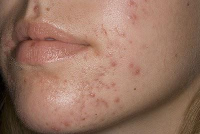 Da mụn thâm đỏ chi chít cũng giảm sưng hơn chỉ trong vài bước-2