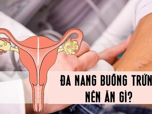 Phụ nữ bị mắc đa nang buồng trứng nên ăn gì để bệnh chóng khỏi, không lo vô sinh