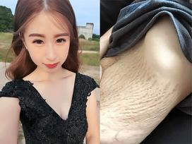 Cô gái xinh đẹp khiến nhiều chị em đồng cảm khi khoe da bụng rạn tung tóe sau lần sinh 4