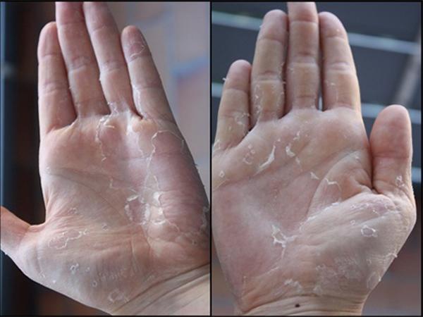 Sức khỏe: Bong da bàn tay bàn chân Bệnh gì?